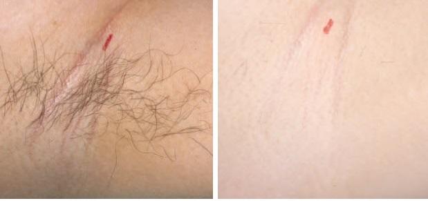 مراقبت های بعد از لیزر موهای زائد
