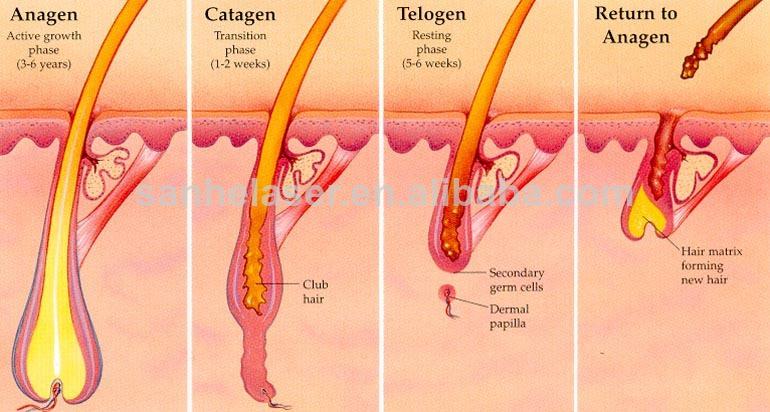 لیزر دائم موهای زائد بدن با دستگاه الکساندرایت